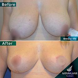 breast-1