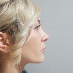 nose-1
