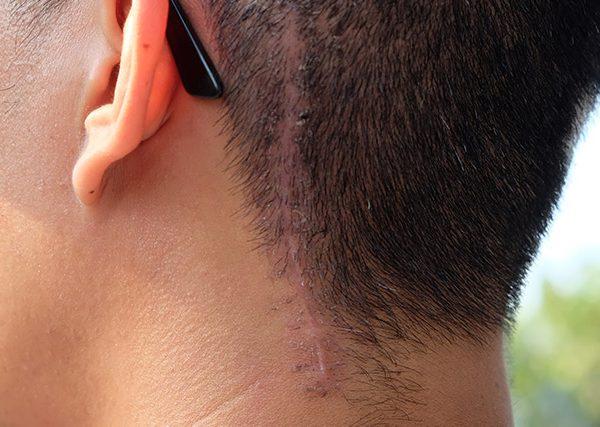 hair-transplant-on-scar