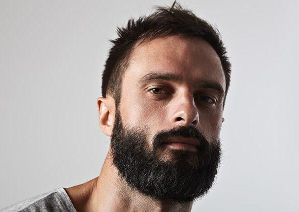 after-beard-transplant