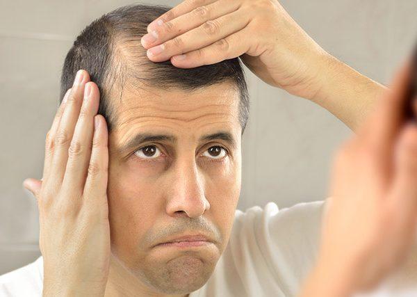 Causes-of-a-Failed-Hair-Transplant