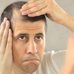 Les causes d'une greffe de cheveux ratée